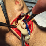 Carotid Head Simulator Plaque