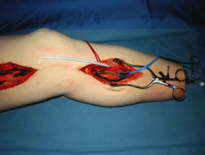 Femoral Leg Medical Simulator